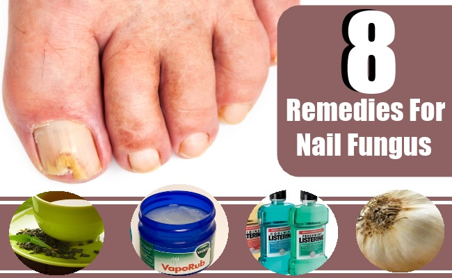 Best Natural Remedy For Fungus Nail